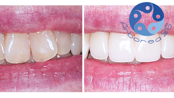 Faccette dentali, vantaggi e curiosità per un sorriso perfetto