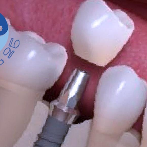 Impianto dentale osteointegrato: di cosa si tratta?