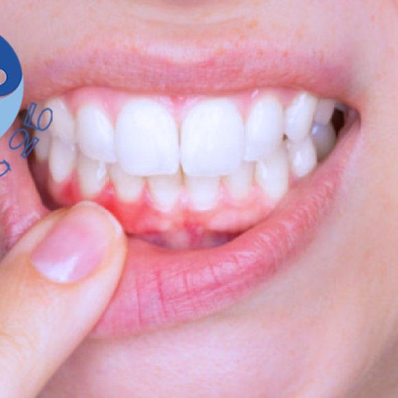 Malattia parodontale e gengivite: come trattarla?