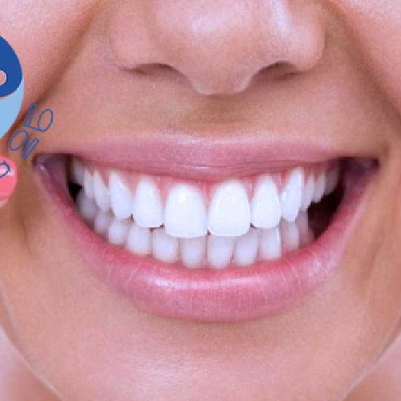 Smacchiamento dentale o sbiancamento: Che differenza c'è?