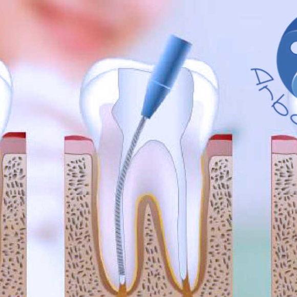 Trattamento della radice dentale: devitalizzazione o terapia canalare?
